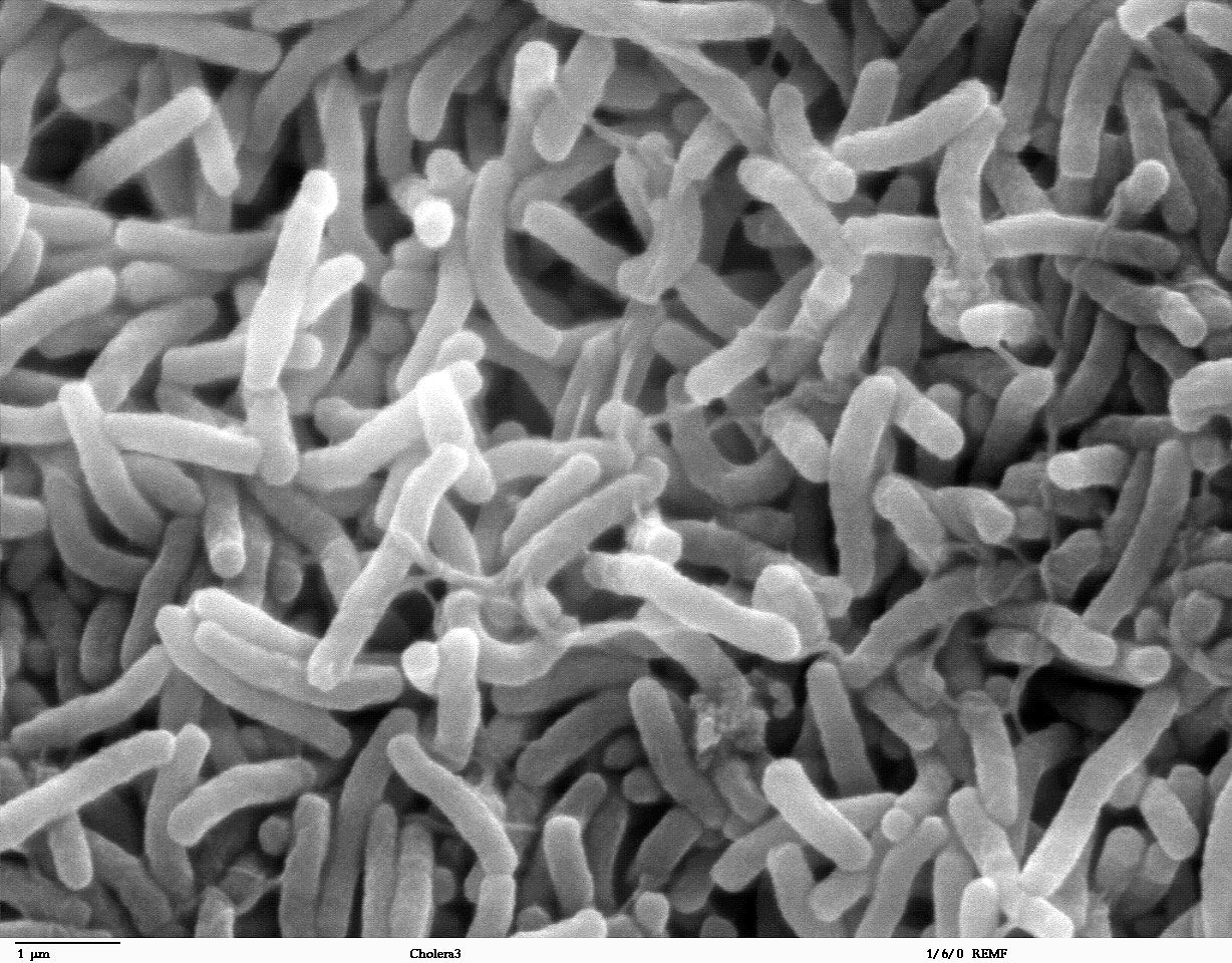 The cholera bacteria in this scanning electron microscope image cause