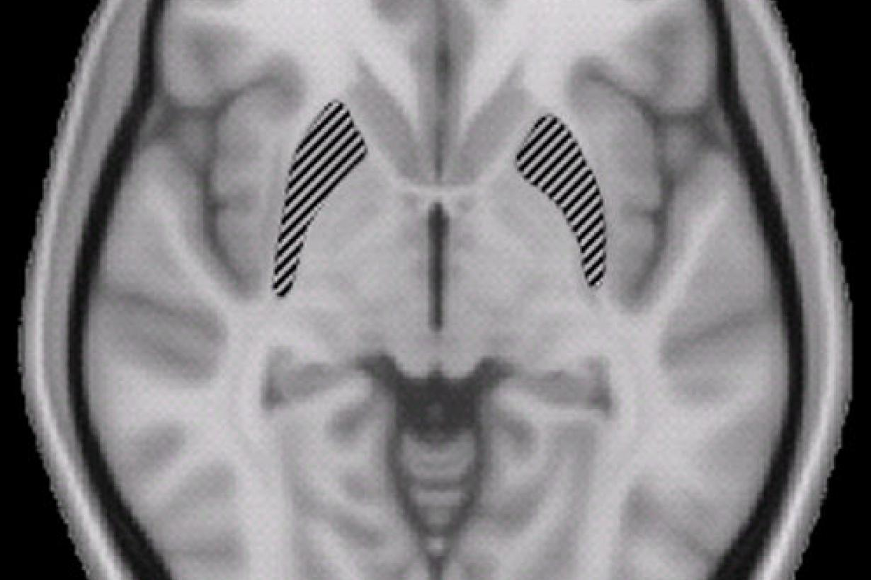 A top down brain scan in black and white.